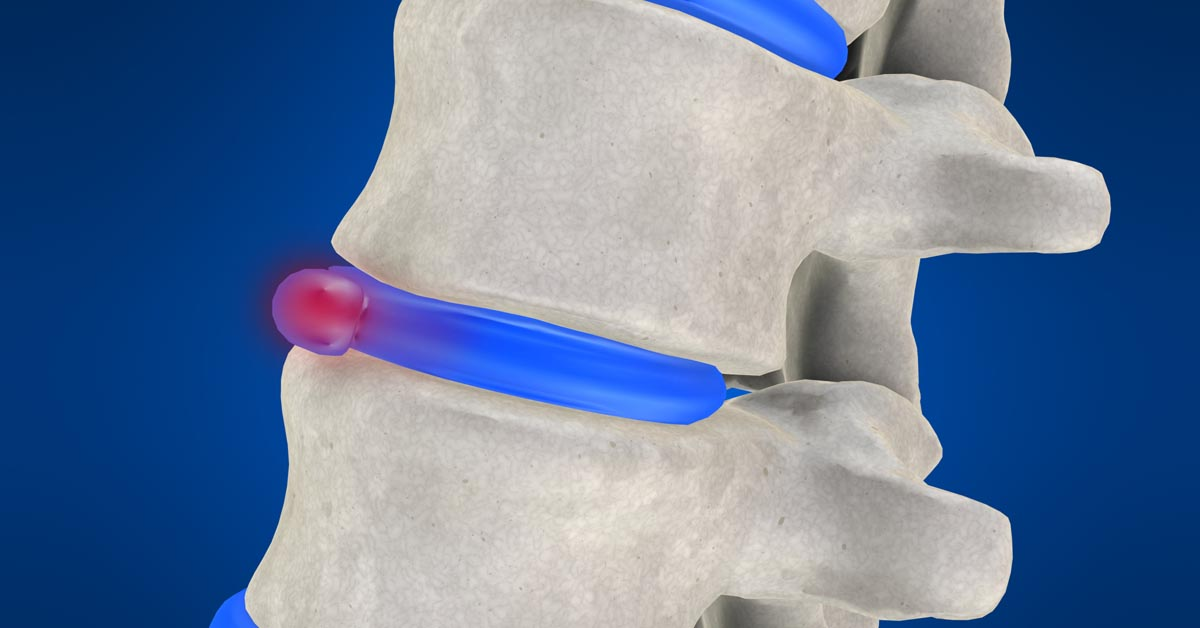 Spinal decompression therapy in Depew