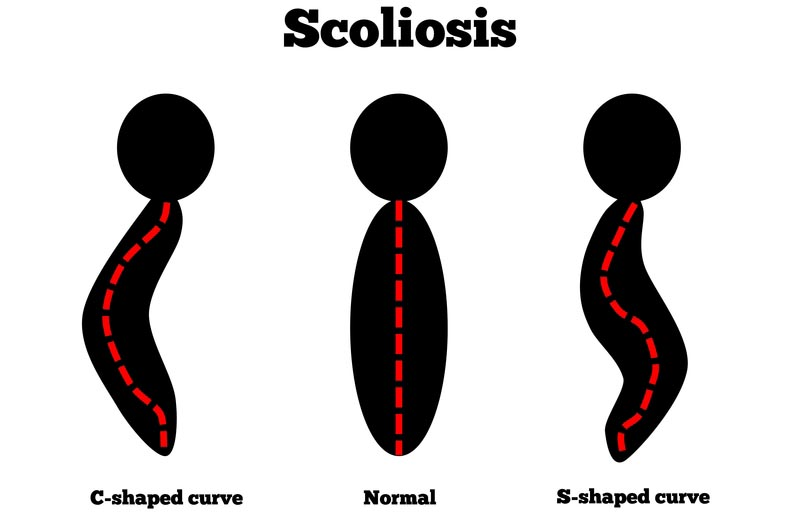Depew, New York scoliosis treatment